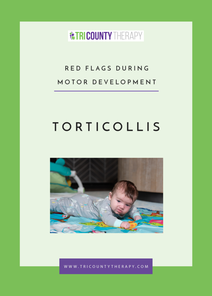 Red Flags During Motor Development: Torticollis